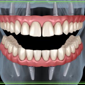 Odontotecnica digitale